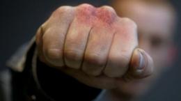 Раніше судимий чоловік вчинив розбійний напад на 72-річну жінку