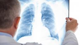 На Буковині померло п'ятеро людей з пневмоніями