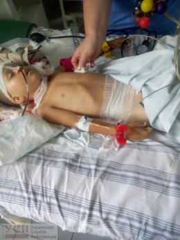 3-річний хлопчик з Чернівців випав з вікна 2 поверху, дитина у важкому стані (фото)
