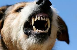 У Чернівцях хвора на сказ собака покусала власницю