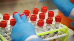 На Буковині жінка, яка повернулась із Франції, захворіла на коронавірус