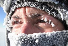 На Буковині госпіталізували 18 людей з переохолодженням та обмороженнями
