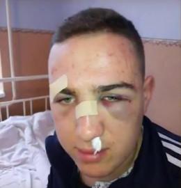 На Буковині школярів, які заступились за дівчину, жорстоко побили на дискотеці