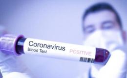 На Буковині за добу від коронавірусу одужали 25 осіб