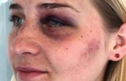 У Чернівцях засудили чоловіка, який побив дівчину посеред вулиці