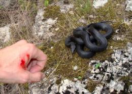 Сироватки від зміїних укусів на Буковині немає