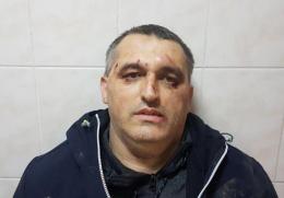 Побитий у Чернівцях представник «Стоп корупції» повідомив деталі інциденту