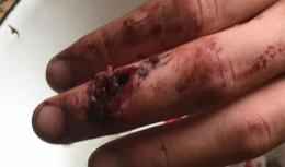 У Чернівцях постраждалий від вибуху біля психлікарні 16-річний хлопець стверджує, що його побили у поліції (фото)