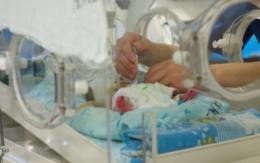 Сіамські близнюки у Чернівцях і далі у критичному стані