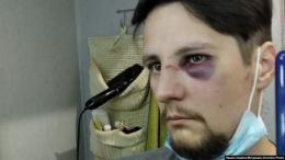 Поліцейські з Чернівців, Ковеля і Бережан побили двох ветеранів АТО