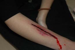 На Буковині 20-річна дівчина порізала собі руки через ревнощі до хлопця