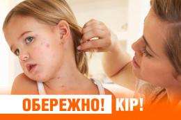 В Чернівецькій області зросло число хворих на кір