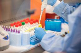 Чернівецький лабораторний центр отримав велику партію реагентів для ПЛР-тестування