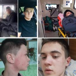 На Буковині двоє чоловіків побили школяра (фото)