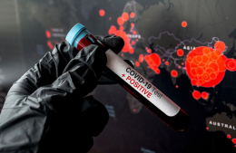 На Буковині зафіксували 63 нові випадки коронавірусу