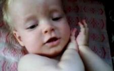 У двохрічного буковинця рідкісне захворювіання на генетичному рівні (відео)