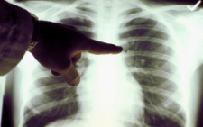 На Буковині за минулу добу померли п'ятеро людей із важкими пневмоніями