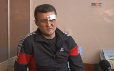 У Чернівцях працівника стоматологічної поліклініки жорстоко побили (відео)